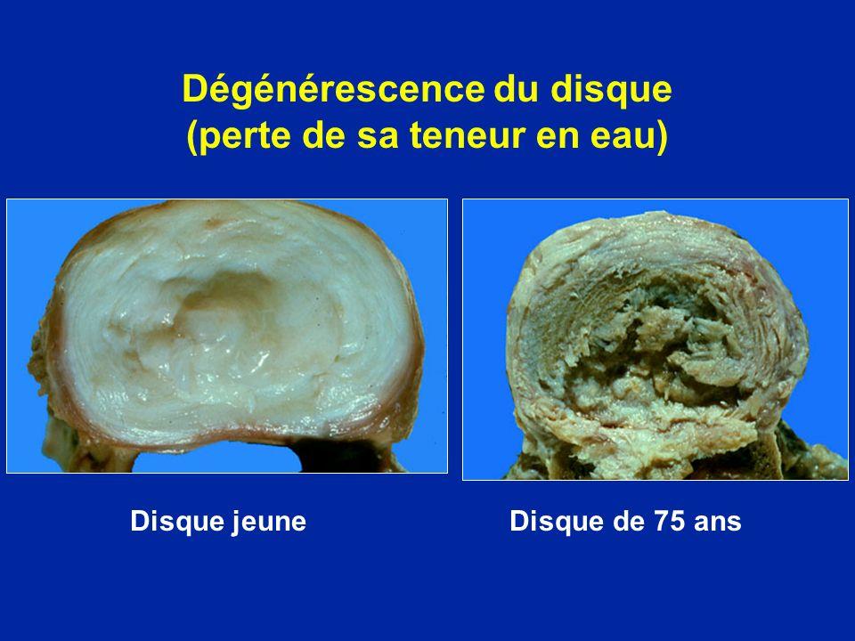 Dégénérescence du disque (perte de sa teneur en eau)