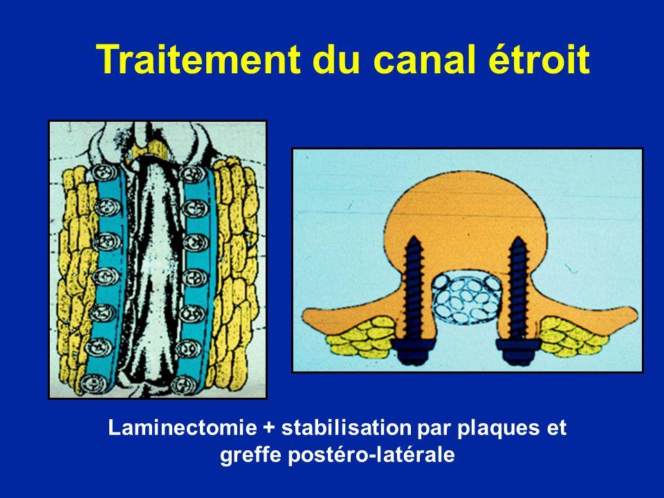 Laminectomie + stabilisation par plaques et greffe postéro-latérale