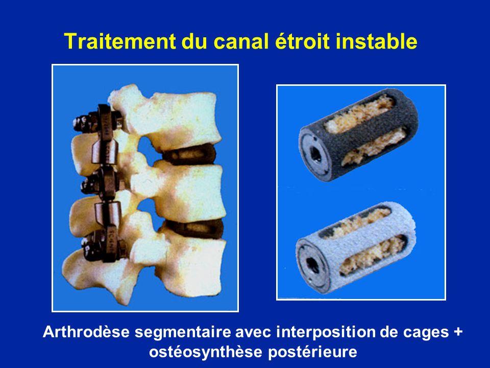 Traitement du canal étroit instable