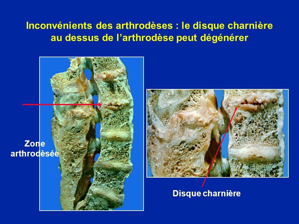 Inconvénients des arthrodèses : le disque charnière au dessus de l'arthrodèse peut dégénérer