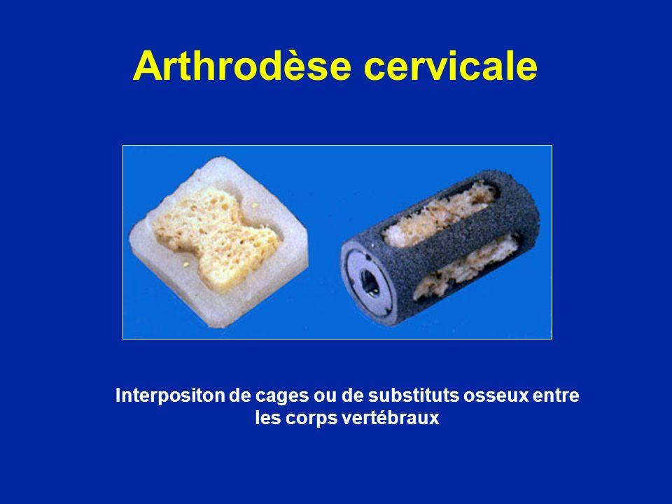 Arthrodèse cervicale Interpositon de cages ou de substituts osseux entre les corps vertébraux