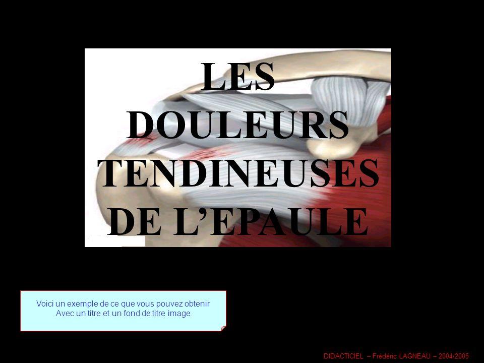 LES DOULEURS TENDINEUSES