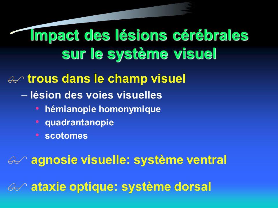 Impact des lésions cérébrales sur le système visuel