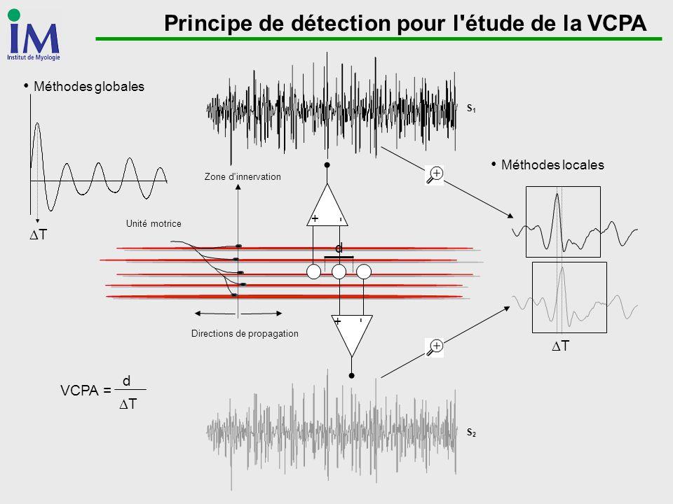 Principe de détection pour l étude de la VCPA