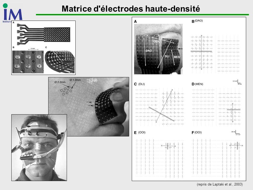 Matrice d électrodes haute-densité