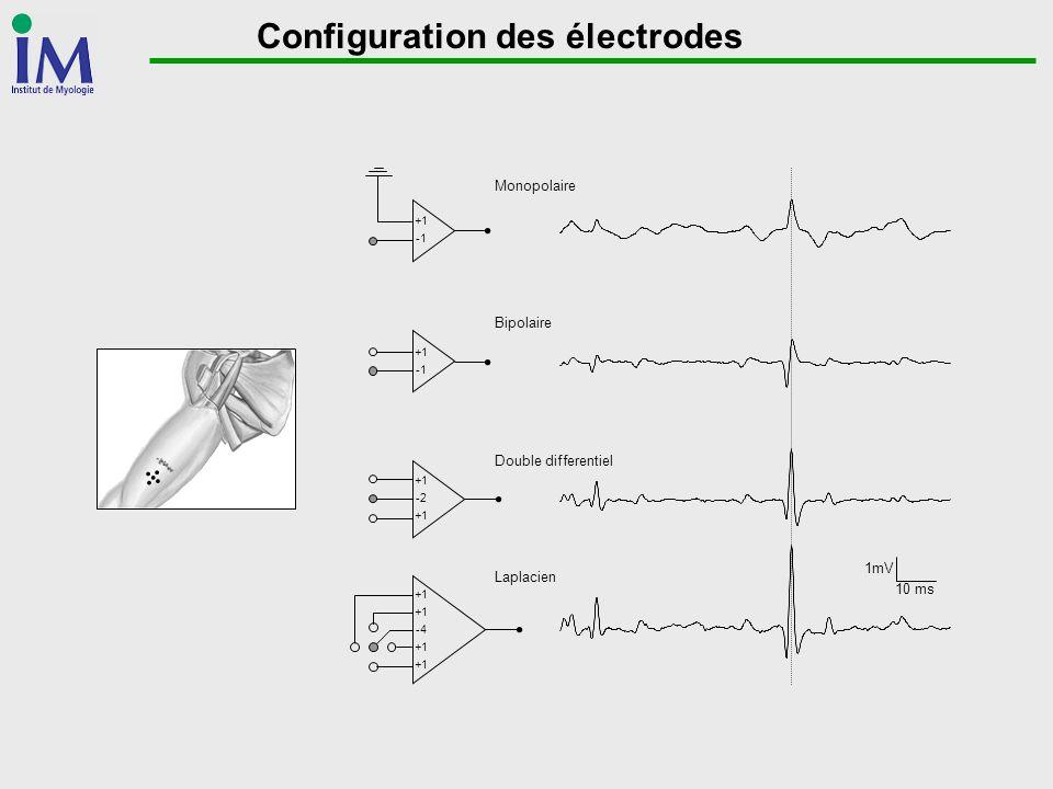 Configuration des électrodes