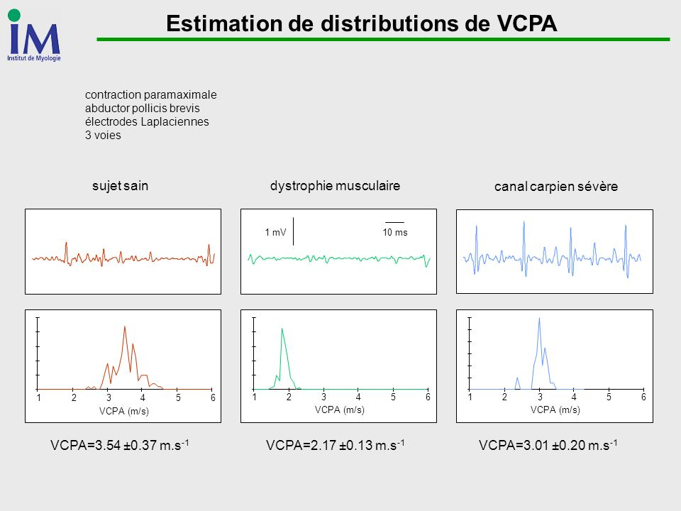 Estimation de distributions de VCPA