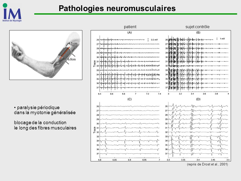 Pathologies neuromusculaires