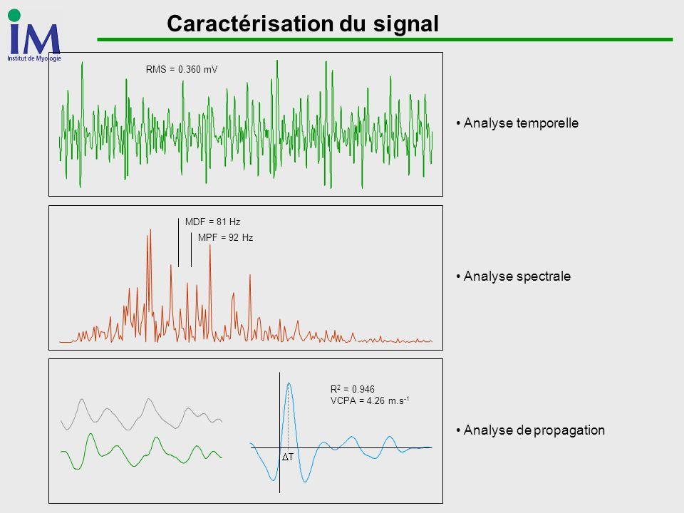 Caractérisation du signal
