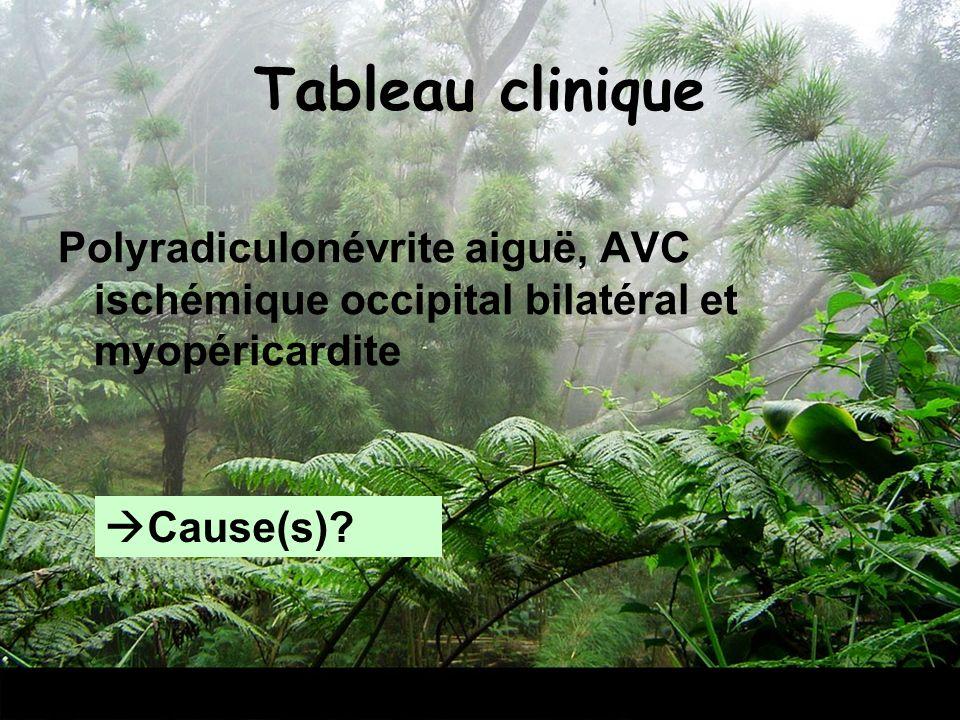 Tableau cliniquePolyradiculonévrite aiguë, AVC ischémique occipital bilatéral et myopéricardite.