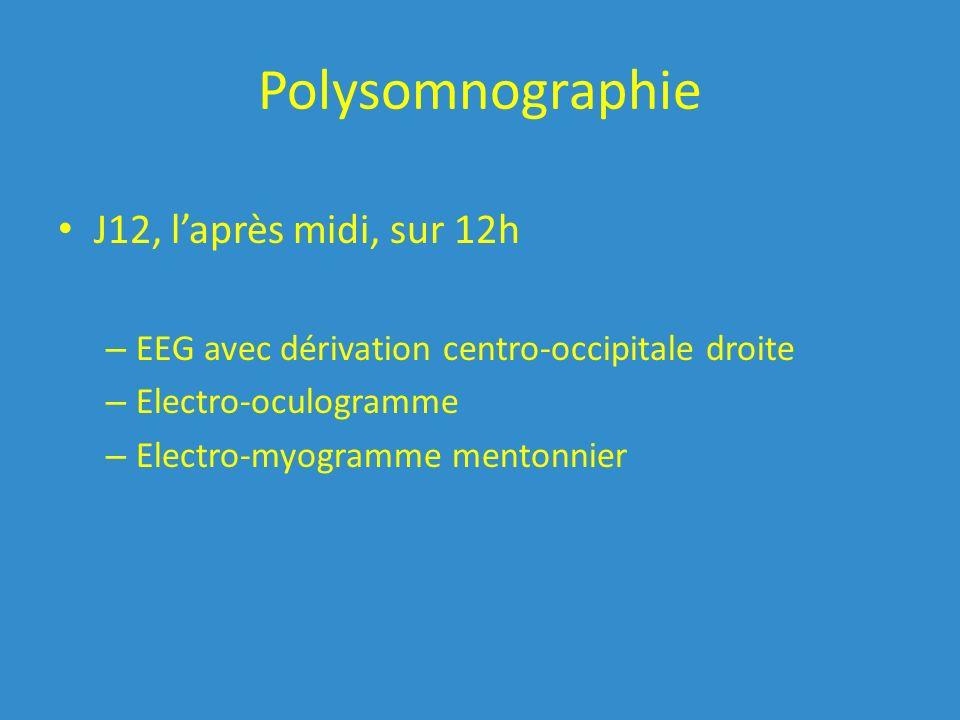 Polysomnographie J12, l'après midi, sur 12h