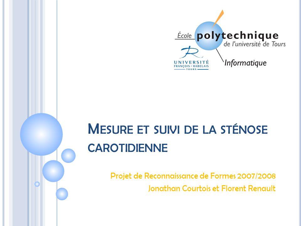 Mesure et suivi de la sténose carotidienne
