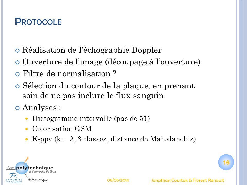 Protocole Réalisation de l'échographie Doppler
