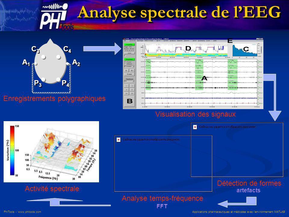 Analyse spectrale de l'EEG