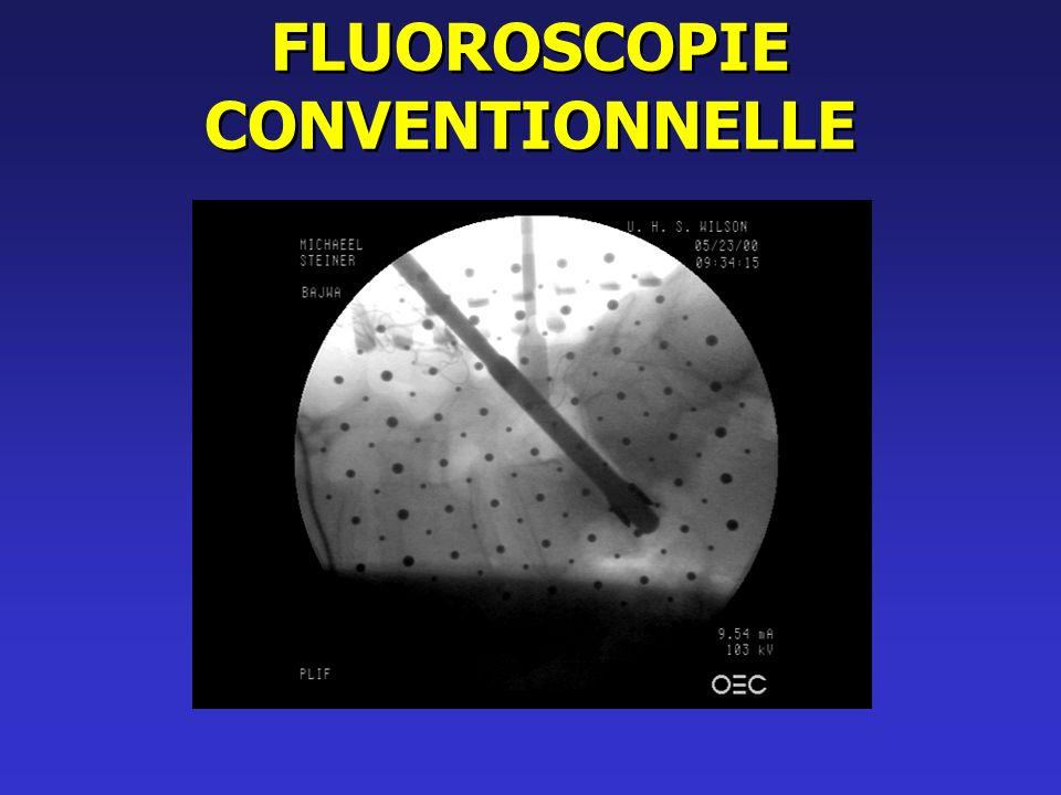 FLUOROSCOPIE CONVENTIONNELLE