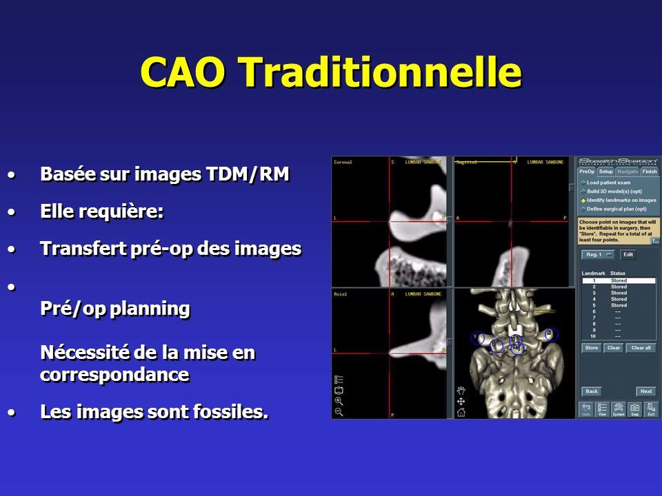CAO Traditionnelle Basée sur images TDM/RM Elle requière: