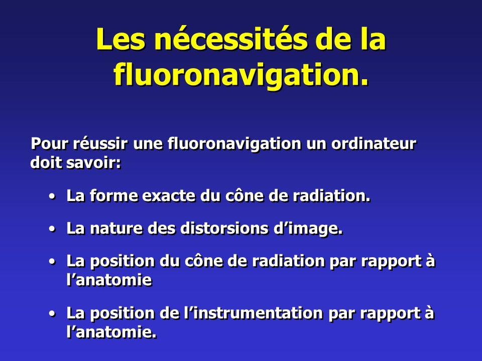 Les nécessités de la fluoronavigation.