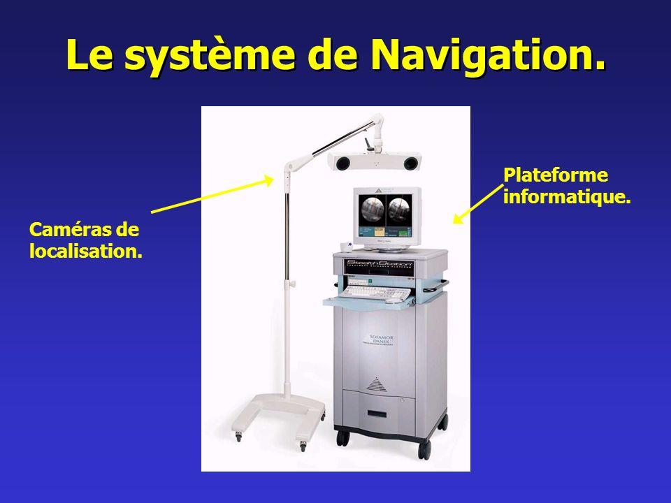 Le système de Navigation.