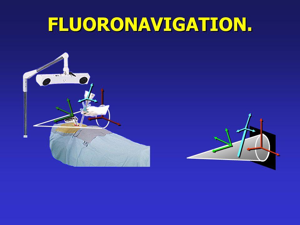 FLUORONAVIGATION.