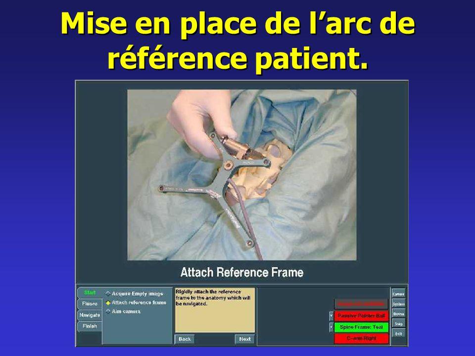 Mise en place de l'arc de référence patient.