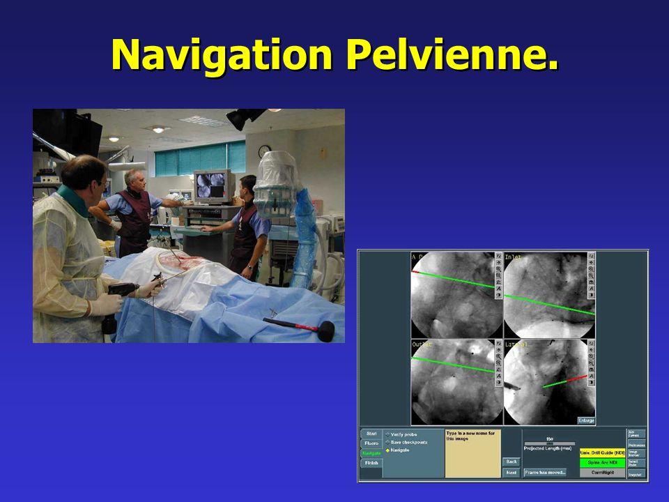 Navigation Pelvienne.