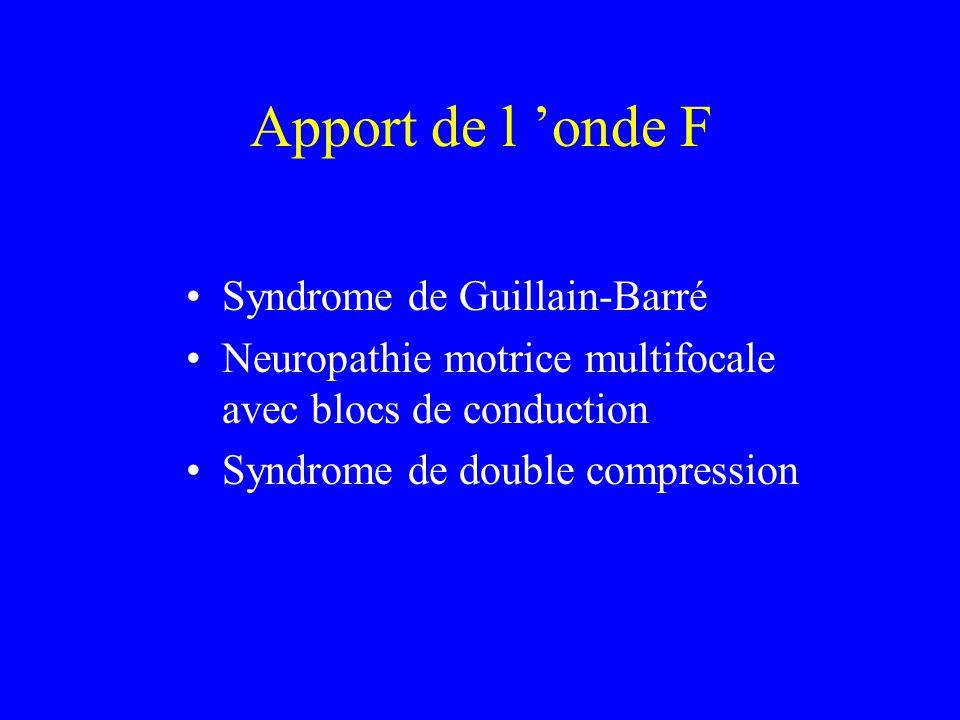 Apport de l 'onde F Syndrome de Guillain-Barré
