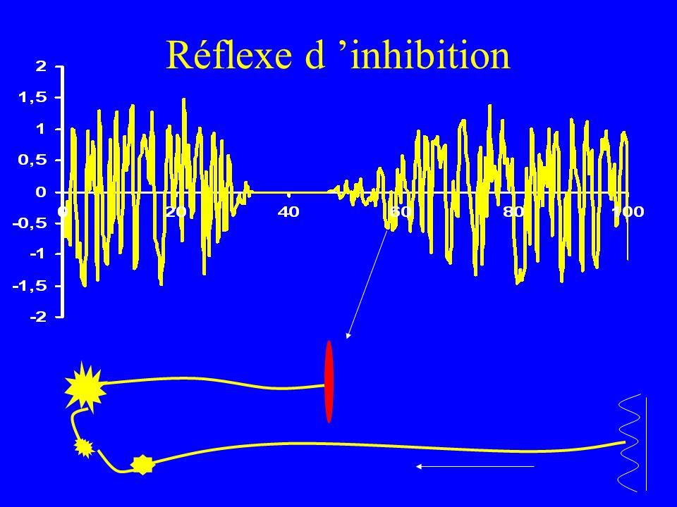 Réflexe d 'inhibition