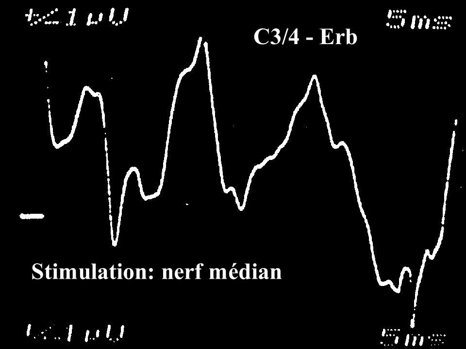C3/4 - Erb Stimulation: nerf médian