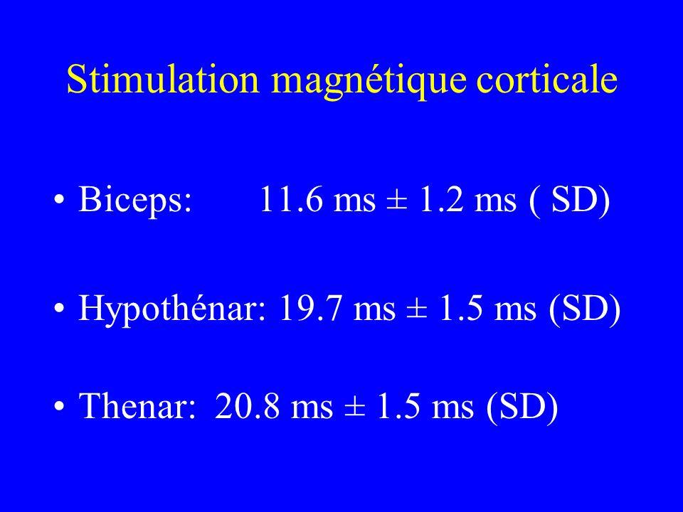 Stimulation magnétique corticale