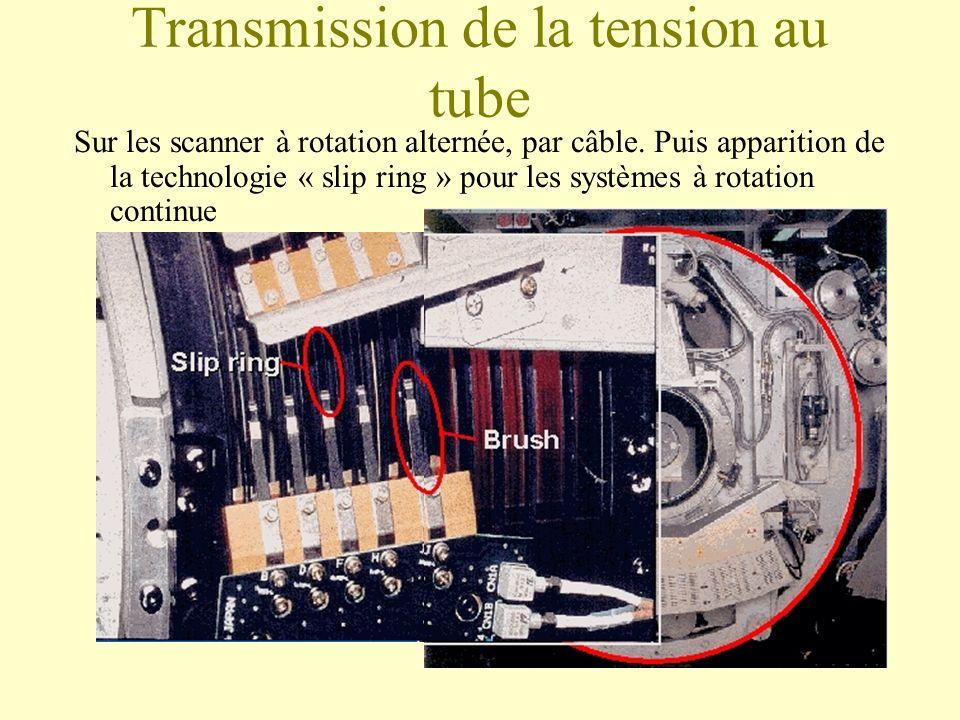Transmission de la tension au tube