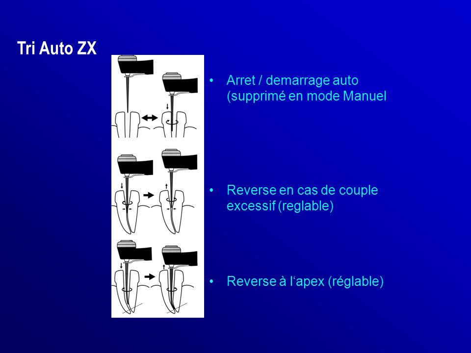 Tri Auto ZX Arret / demarrage auto (supprimé en mode Manuel