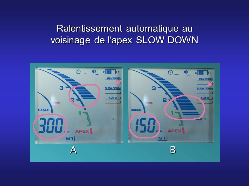 Ralentissement automatique au voisinage de l'apex SLOW DOWN