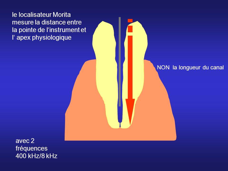 le localisateur Morita mesure la distance entre la pointe de l'instrument et l' apex physiologique
