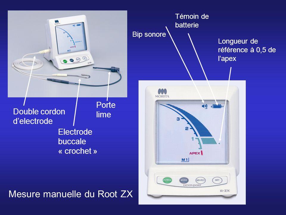 Mesure manuelle du Root ZX