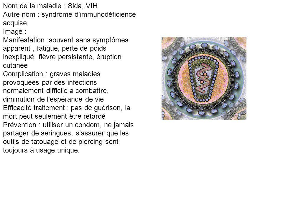 Nom de la maladie : Sida, VIH