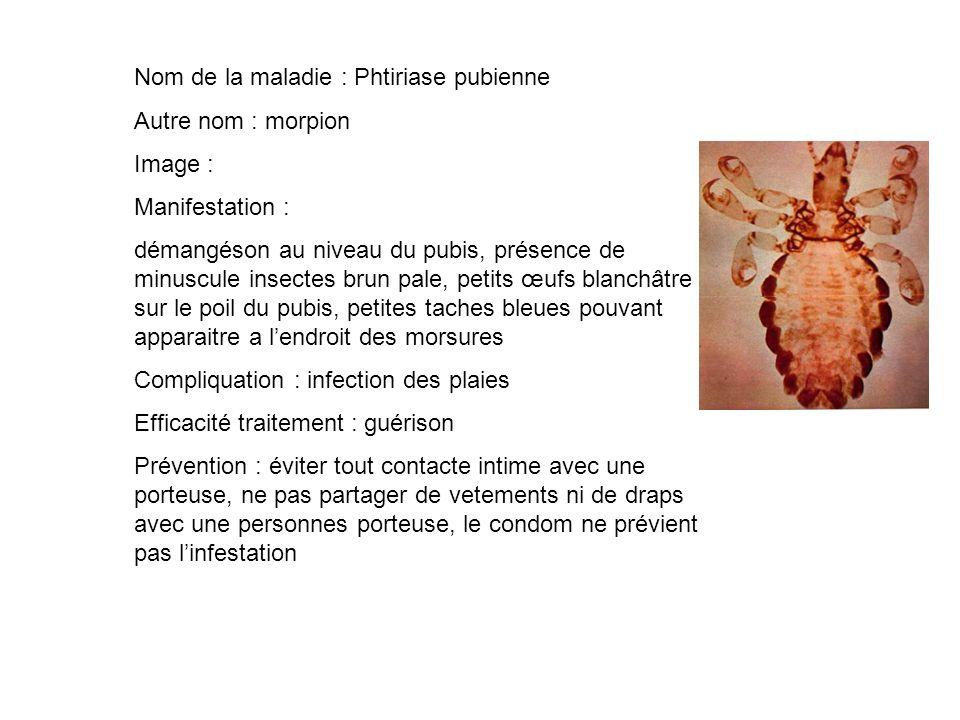Nom de la maladie : Phtiriase pubienne