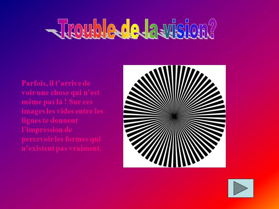 Trouble de la vision