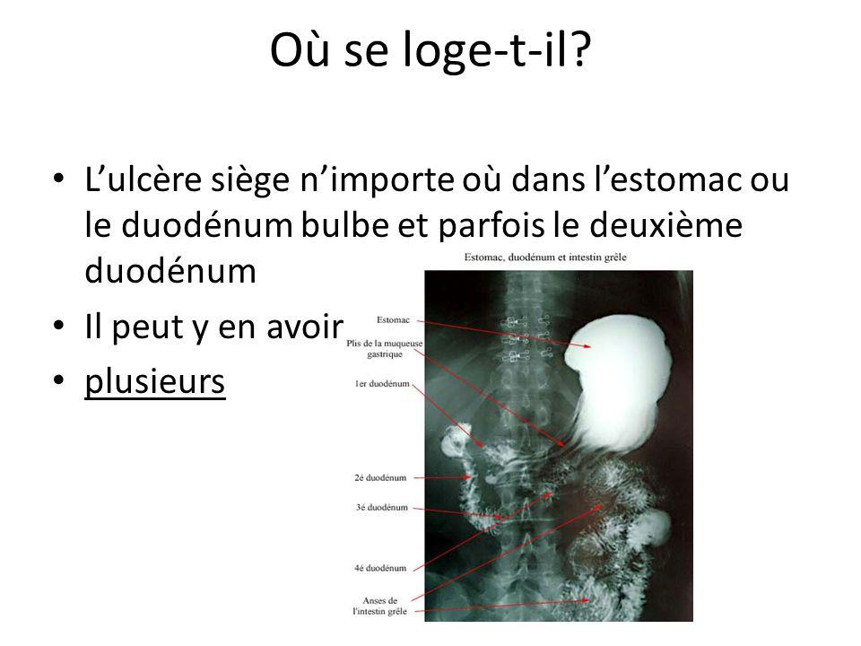 Où se loge-t-il L'ulcère siège n'importe où dans l'estomac ou le duodénum bulbe et parfois le deuxième duodénum.
