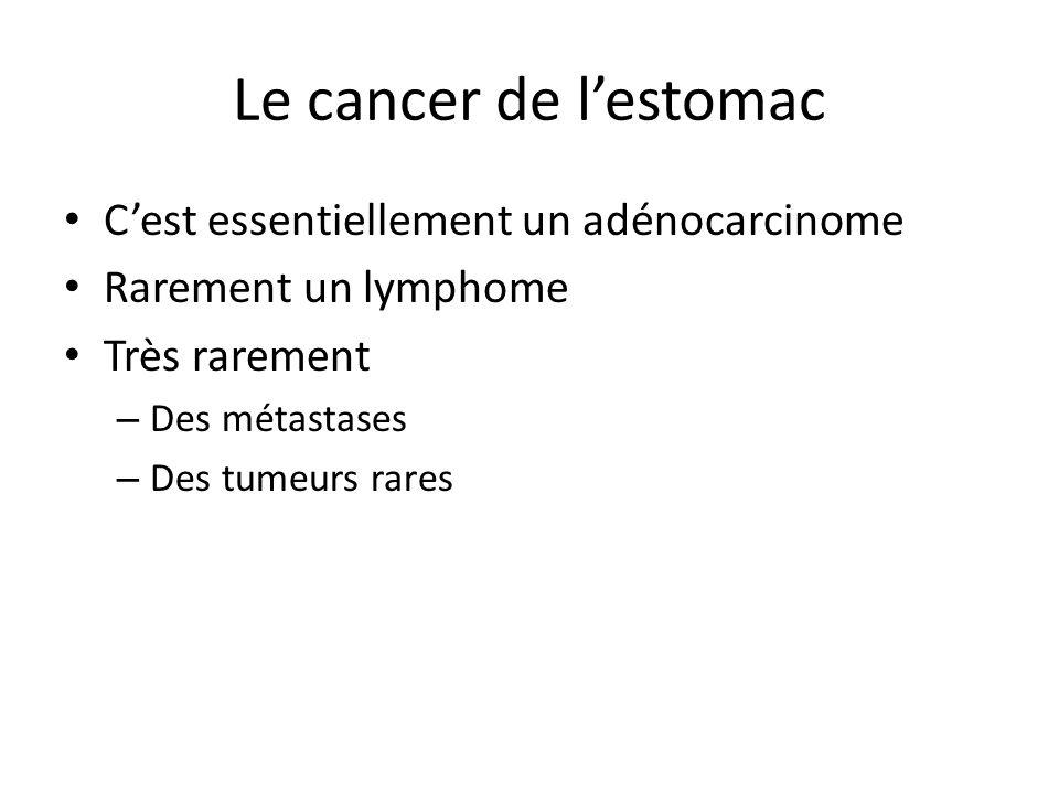 Le cancer de l'estomac C'est essentiellement un adénocarcinome