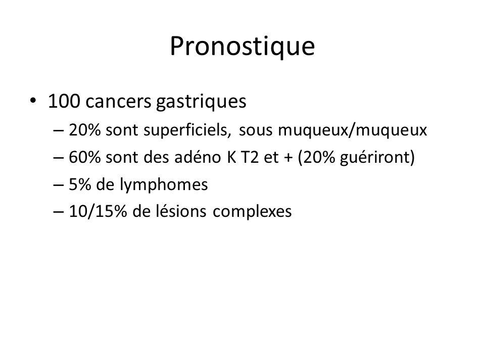 Pronostique 100 cancers gastriques