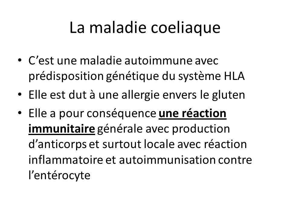 La maladie coeliaque C'est une maladie autoimmune avec prédisposition génétique du système HLA. Elle est dut à une allergie envers le gluten.