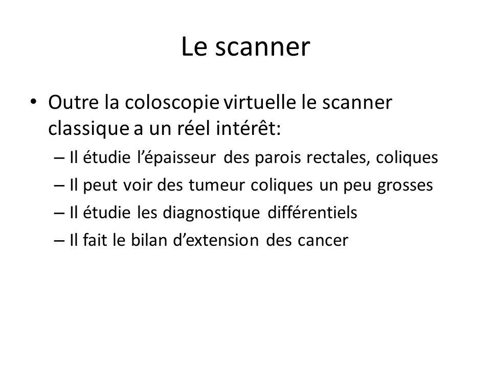 Le scanner Outre la coloscopie virtuelle le scanner classique a un réel intérêt: Il étudie l'épaisseur des parois rectales, coliques.