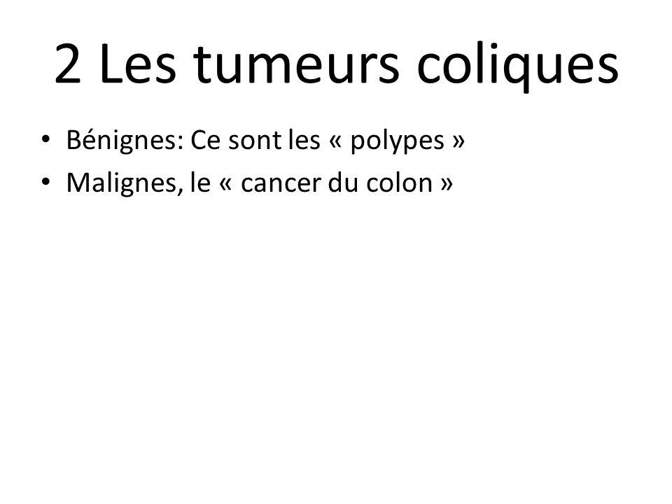 2 Les tumeurs coliques Bénignes: Ce sont les « polypes »