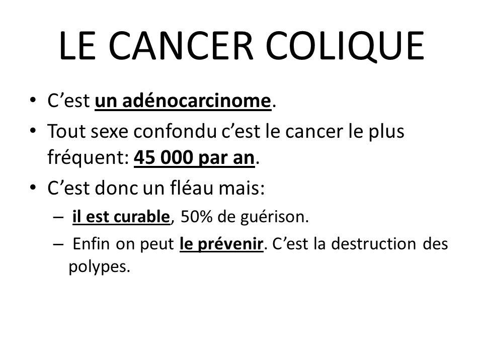 LE CANCER COLIQUE C'est un adénocarcinome.