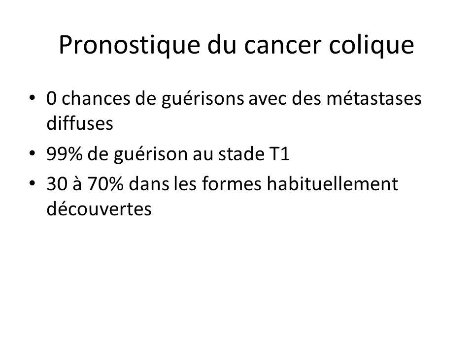 Pronostique du cancer colique