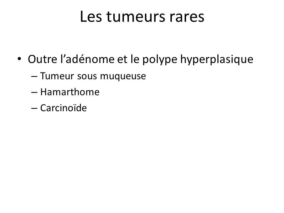 Les tumeurs rares Outre l'adénome et le polype hyperplasique