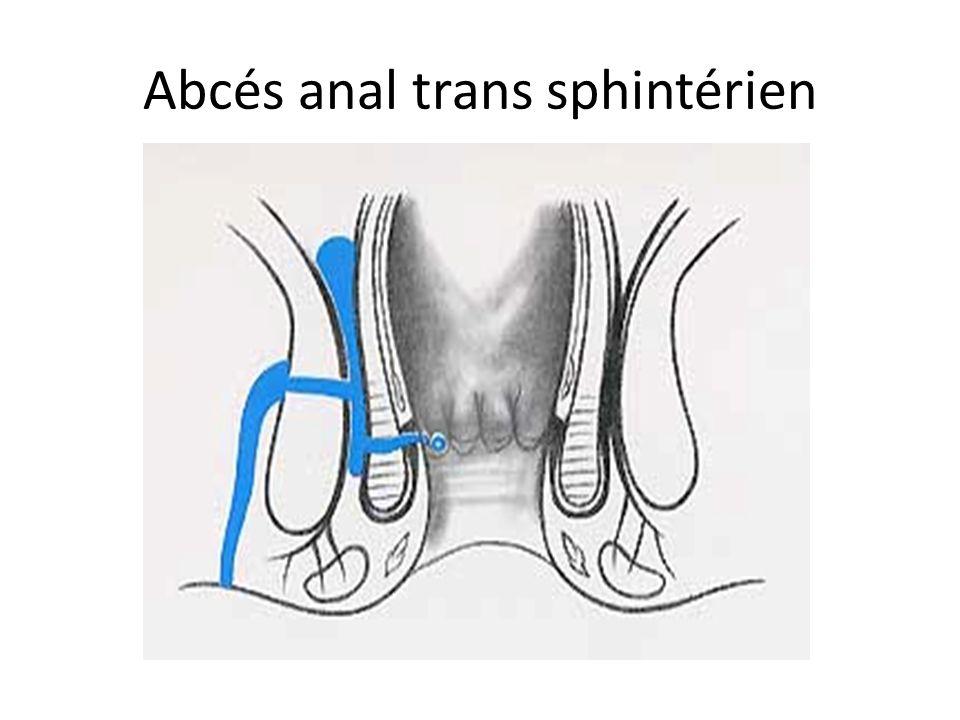 Abcés anal trans sphintérien