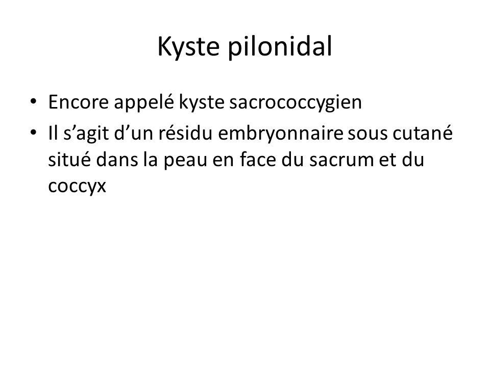 Kyste pilonidal Encore appelé kyste sacrococcygien