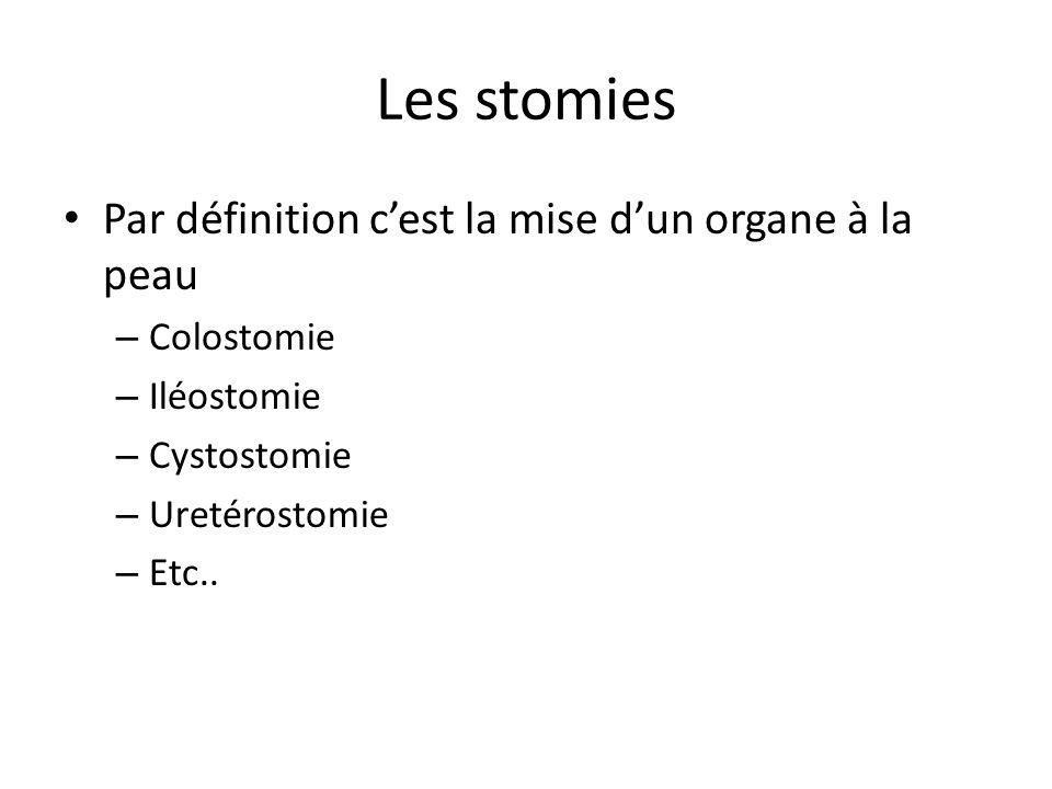 Les stomies Par définition c'est la mise d'un organe à la peau