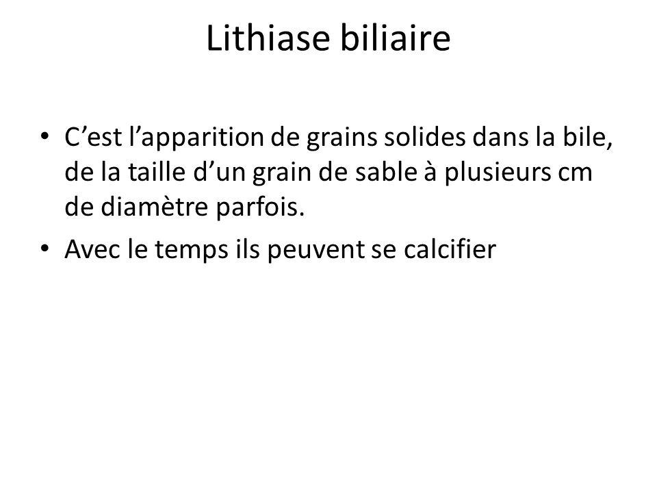Lithiase biliaire C'est l'apparition de grains solides dans la bile, de la taille d'un grain de sable à plusieurs cm de diamètre parfois.